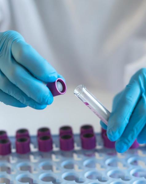 antigen-test-image-1
