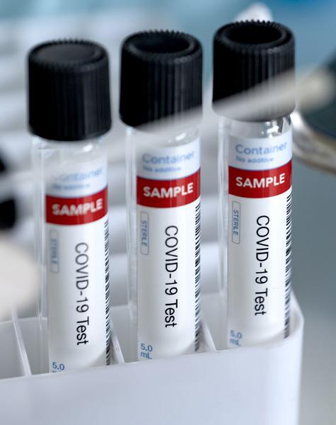 molecular-test-image-3